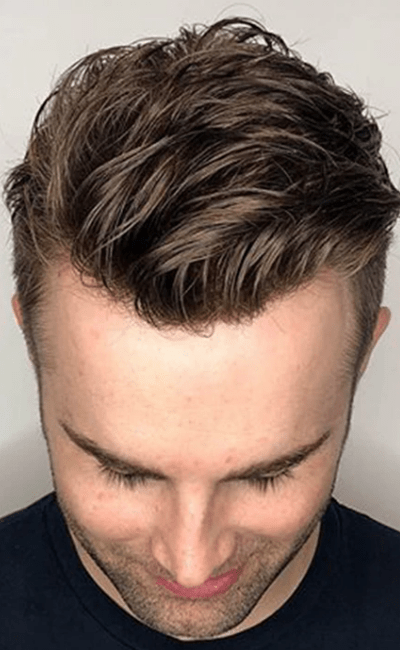 Hair for Him Australia - After