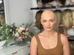 Read more about the article Alopecia Awareness: You are not alone