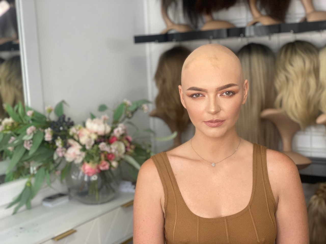 You are currently viewing Alopecia Awareness: You are not alone